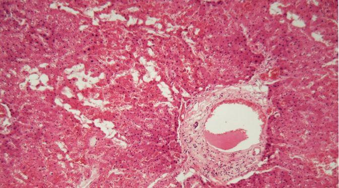 Penyakit Amiloidosis
