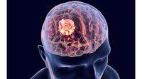 Bahan Alami yang Bantu Menghambat Pertumbuhan Sel Kanker Otak