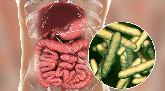 Penyakit Whipple (Kateryna Kon/Shutterstock)