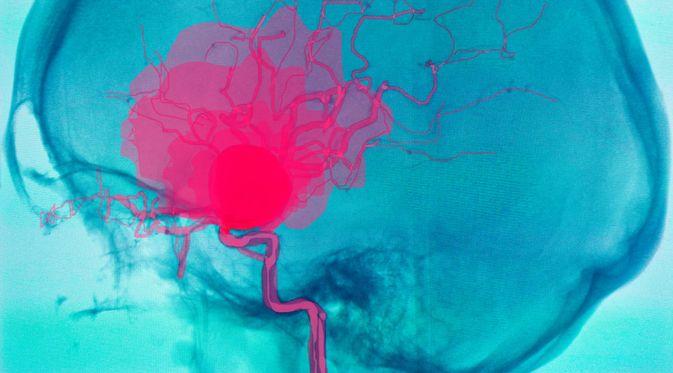 Penyakit Anuerisma serebral (Semnic/Shutterstock)