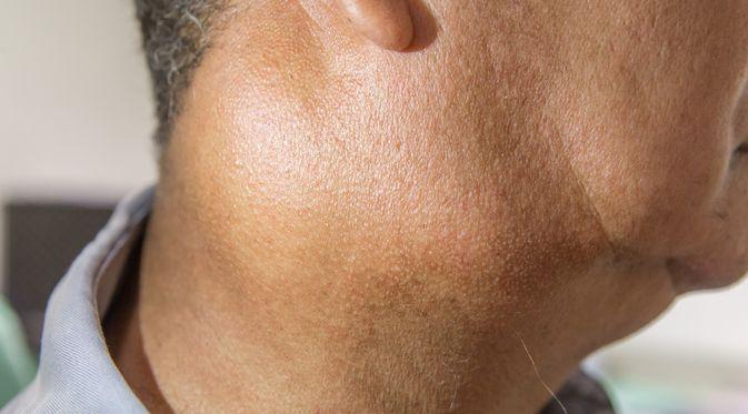 Penyakit Limfadenopati (Karan Bunjean/Shutterstock)