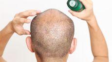 Benarkah Obat Penumbuh Rambut Picu Disfungsi Ereksi?