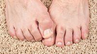 Penyebab Jempol Kaki Bau dan Cara Menghilangkannya