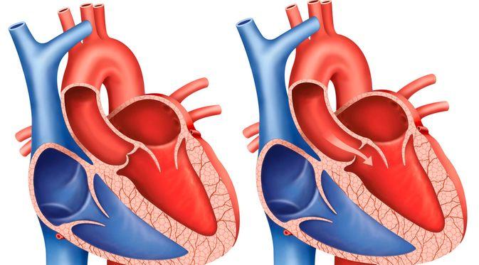 Penyakit Regurgitasi Aorta