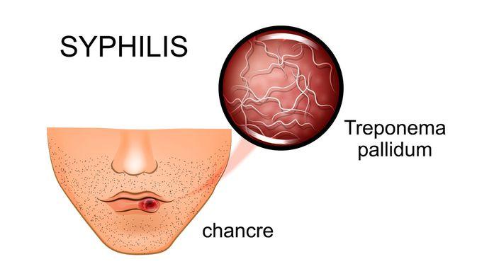 Sifilis_