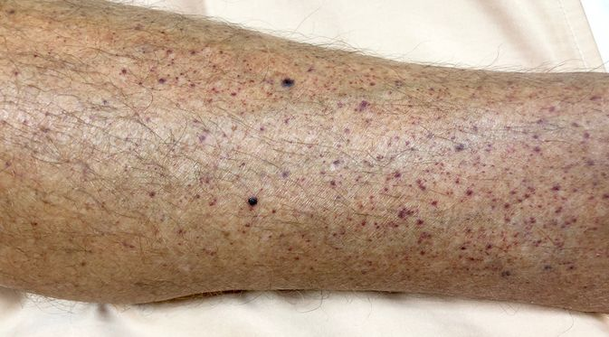 Penyakit idiopathic thrombocytopenic purpura (TisforThan/Shutterstock)