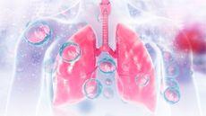 Mengenal Prosedur Lung Lavage, Operasi Pembersihan Paru