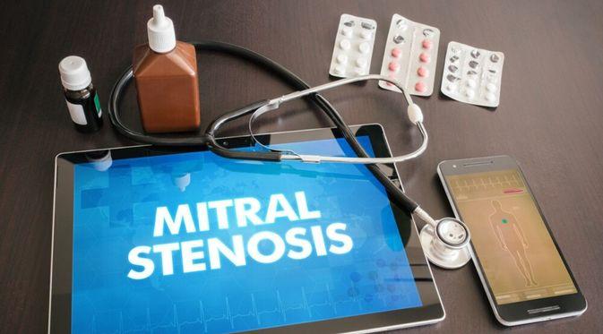 Penyakit Stenosis Mitral