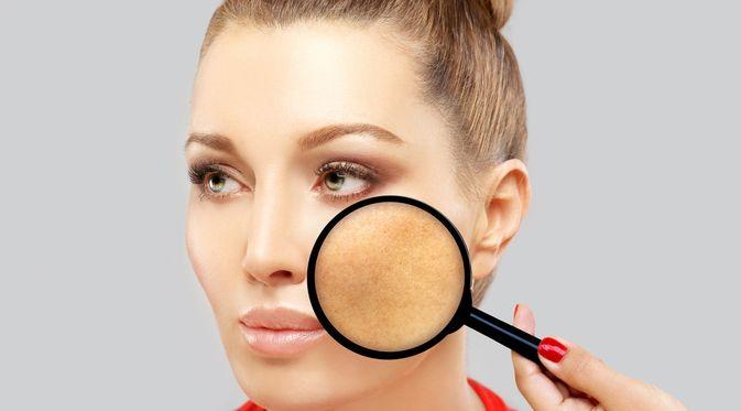 Penyakit Sindrom Albright (LADO/Shutterstock)