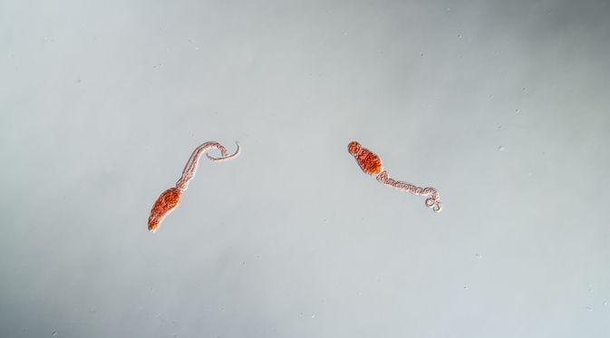 Penyakit Schistosomiasis (Dr. Norbert Lange/Shutterstock)