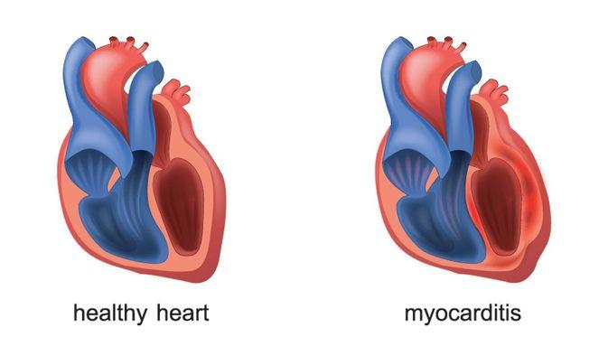 Penyakit Miokarditis - KlikDokter.com (Artemida Psy/Shutterstock)