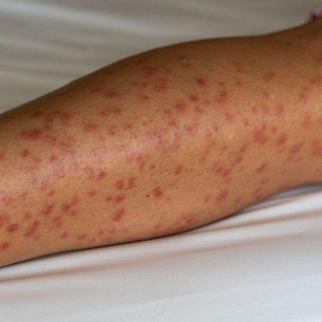 15+ Cara Menghilangkan Bekas Gigitan Nyamuk mudah