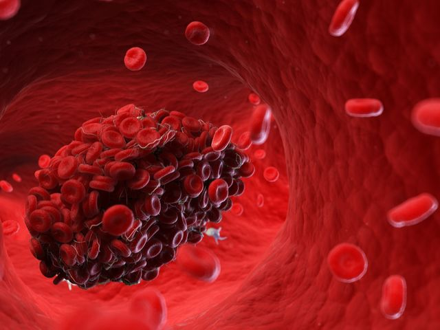 Virus Corona Bisa Sebabkan Penggumpalan Darah