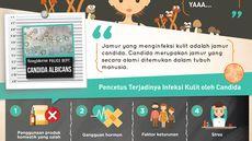 Infographic: Jamur Dapat Sebabkan Jerawat, Benarkah?