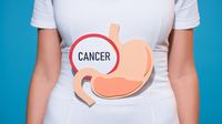 Awas, Bakteri H. Pylori Bisa Sebabkan Kanker Lambung