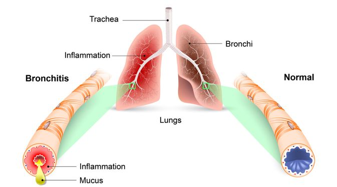 Faktor Risiko Menderita Bronkitis