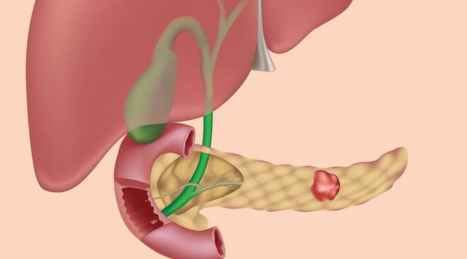 Kanker Pankreas - KlikDokter.com (Alila Medical Media/Shutterstock)