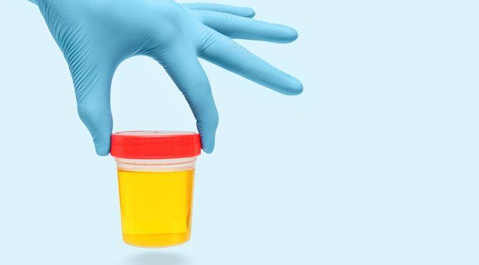Diagnosis Infeksi Saluran Kemih dengan Pemeriksaan Urine