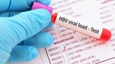 Mengenal Tes Viral Load untuk Mendeteksi Hepatitis C