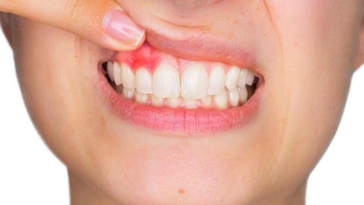 Ada Benjolan Di Gusi Kapan Perlu Ke Dokter Gigi