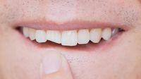 Gigi Retak atau Patah, Ini Cara Menanganinya