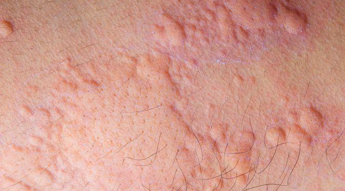 Penyakit Urtikaria (OoddySmile Studio/Shutterstock)