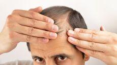 Rambut Pria Bisa Rontok Akibat Masturbasi atau Onani, Benarkah?