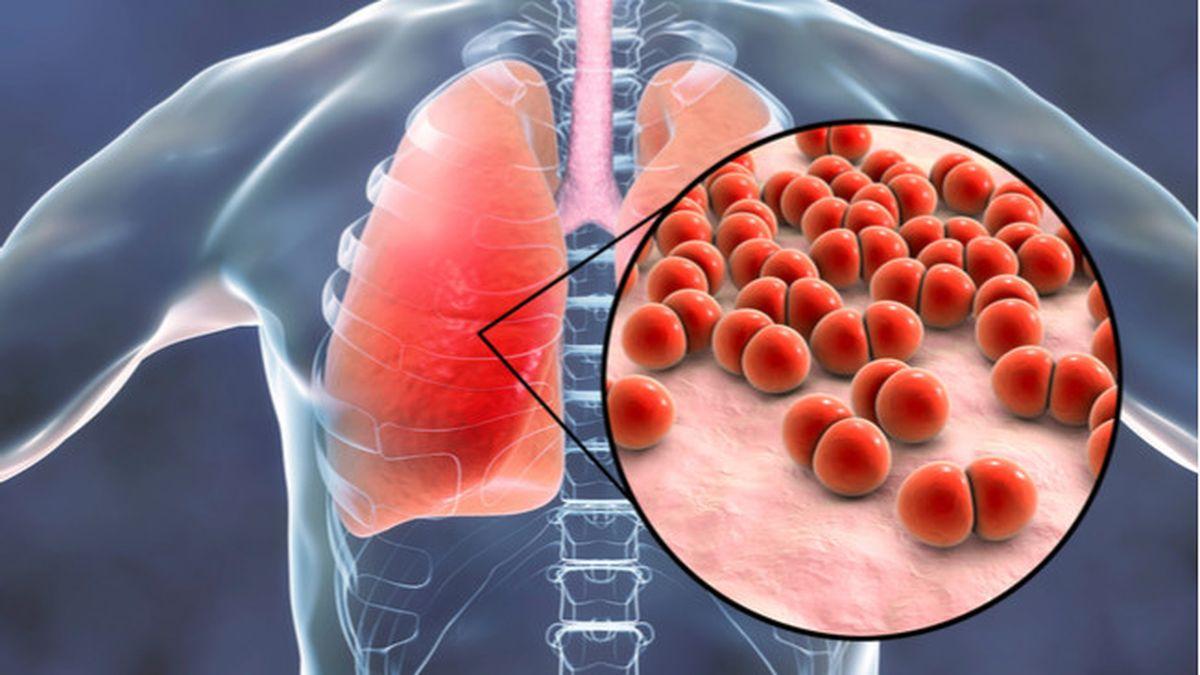 Pneumonia Penyakit Paru Paru Yang Bisa Sebabkan Kematian