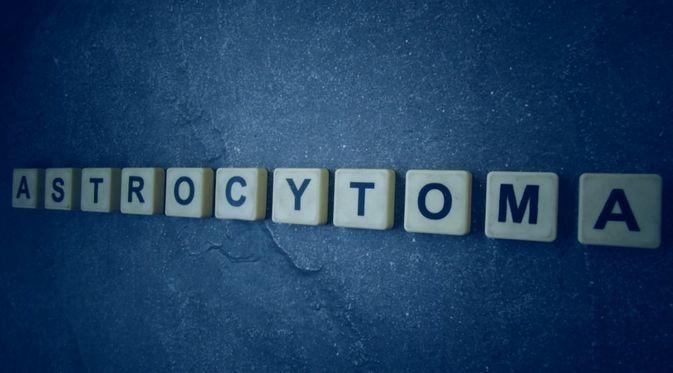 Penyakit Astrositoma