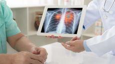 Mengenal Terapi RET Inhibitor untuk Kanker Paru