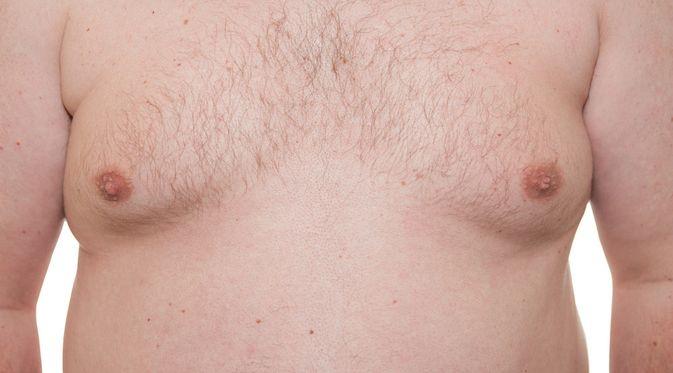 Penyakit Ginekomastia - KlikDokter.com (Semmick Photo/Shutterstock)