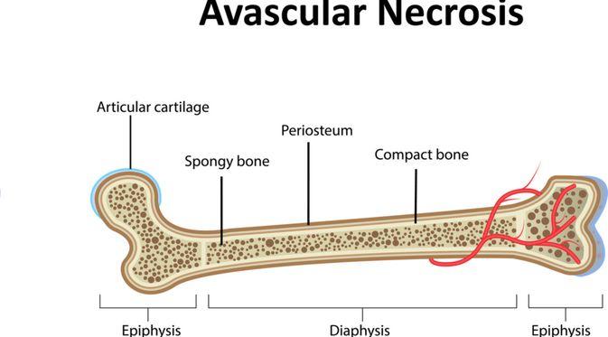 Penyakit Avascular Necrosis