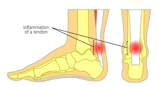 Penyakit Tendinitis Achilles (Aksanaku/Shutterstock)