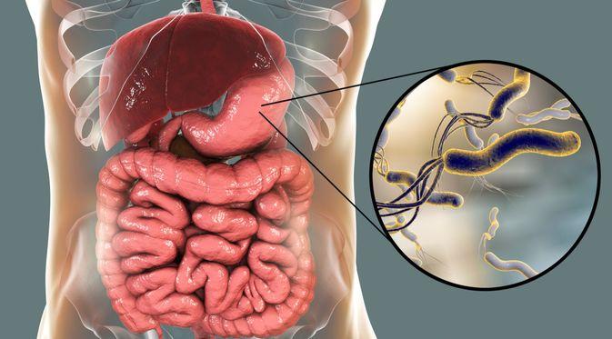 Bakteri Helicobacter Pylori Penyebab Tukak Lambung