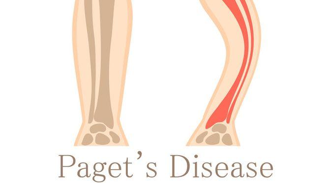 Penyakit Paget tulang (Rvector/Shutterstock)