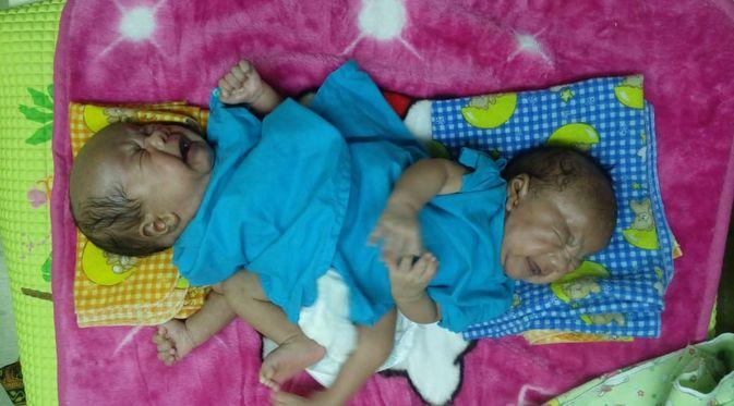 Penyakit Kembar Siam