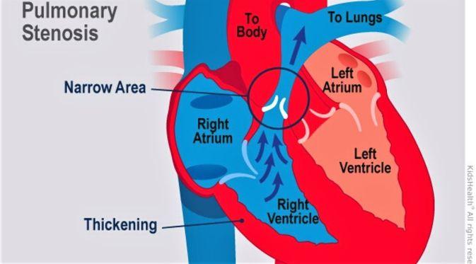 Penyakit Stenosis Pulmonal