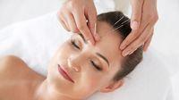 Benarkah Pengobatan Akupunktur Bisa Atasi Insomnia?