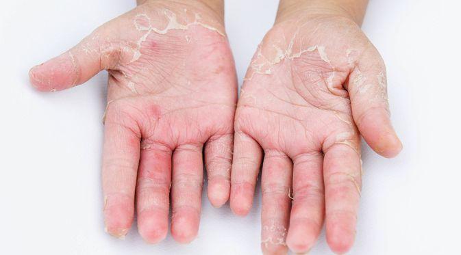 Dermatitis Kontak - KlikDokter.com (girl think position/Shutterstock)