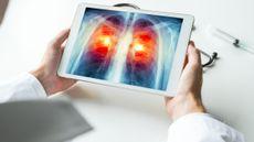 Mengenal Prosedur Krioablasi untuk Pengobatan Kanker