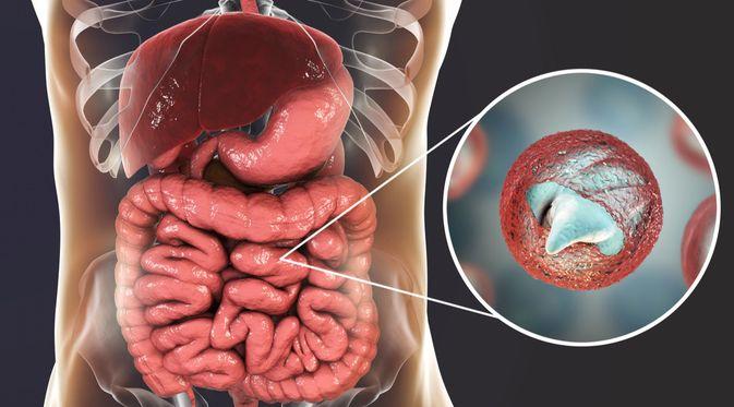 Penyakit Kriptosporidiosis
