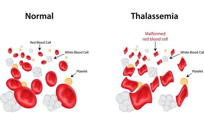 Penyakit Thallasemia