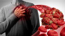 Hati-Hati, Pasien Virus Corona Bisa Alami Pembekuan Darah Misterius