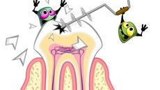4 Hal Utama yang Berperan pada Terjadinya Gigi Berlubang