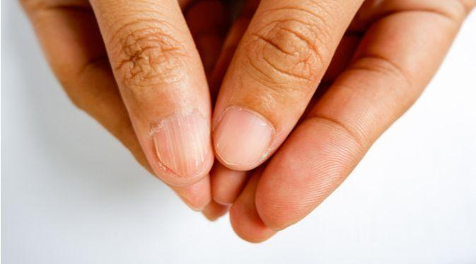 Penyakit Anemia Defisiensi Besi (SBshot87/Shutterstock)