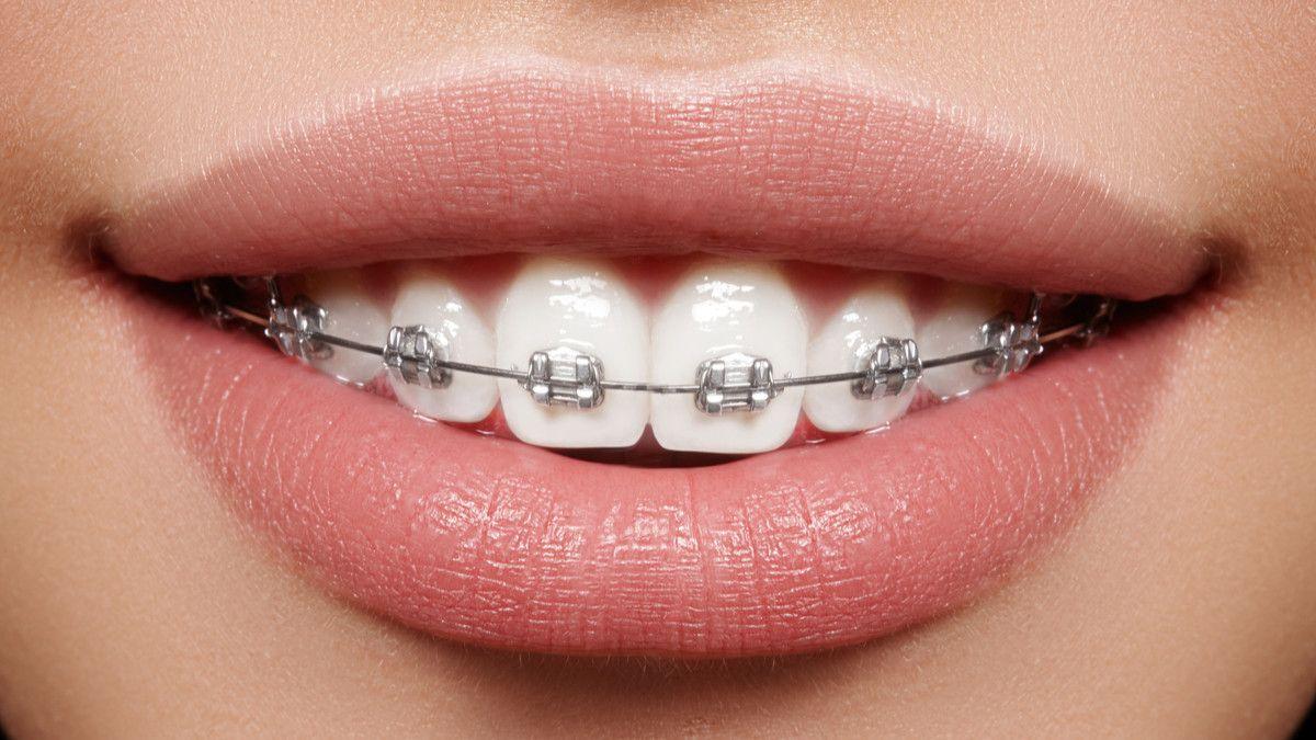 Behel Transparan Buat Gigimu Lebih Rapi Dan Percaya Diri