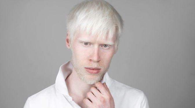 Penyakit Albinisme