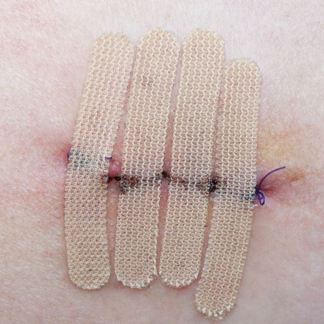 pengaruh rokok terhadap perawatan luka
