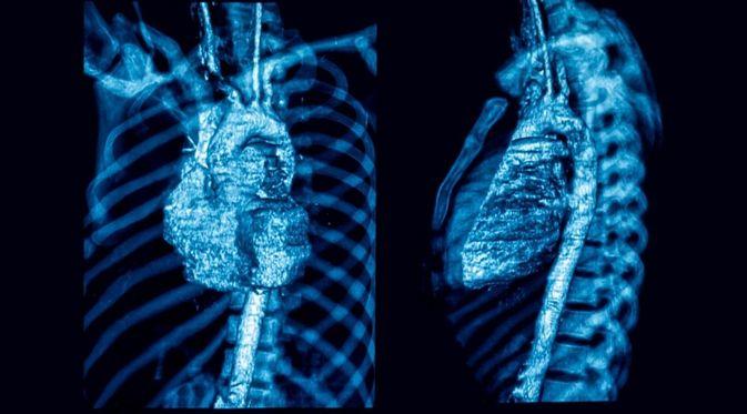 Penyakit Arteritis Takayasu
