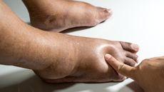 Hindari, Ini Berbagai Kebiasaan Buruk Pemicu Kaki Diabetes